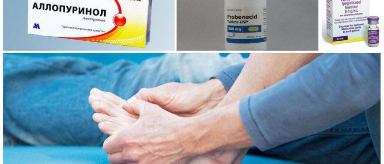 Препараты, выводящие мочевую кислоту