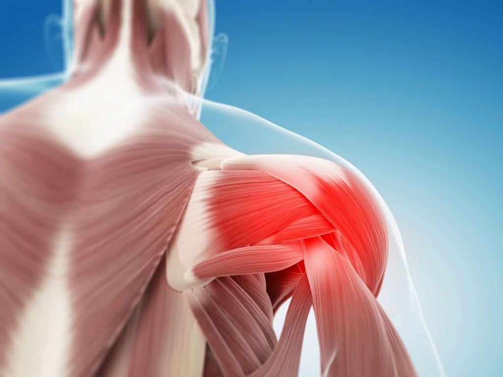Плечевой остеохондроз