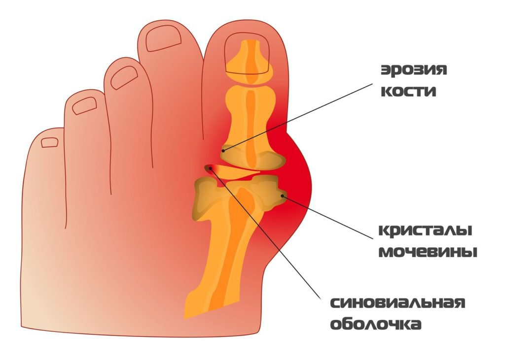 Подагра большого пальца ноги