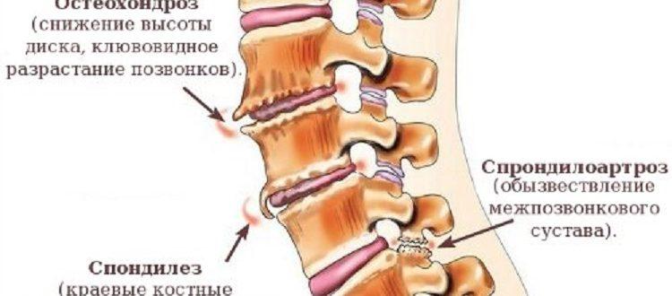 Спондилез и остеохондроз